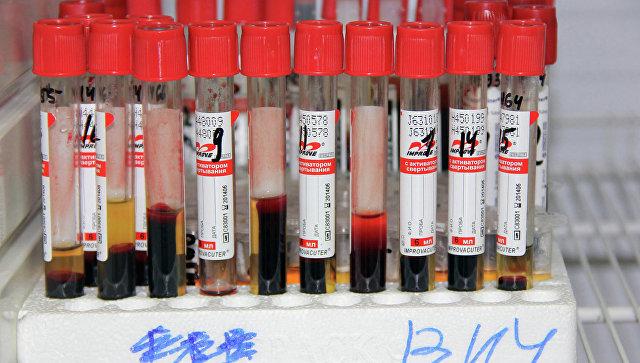 Ампулы с кровью. Клиенты томского центра Анти-СПИД сдали кровь на ВИЧ-инфекцию. Архивное фото