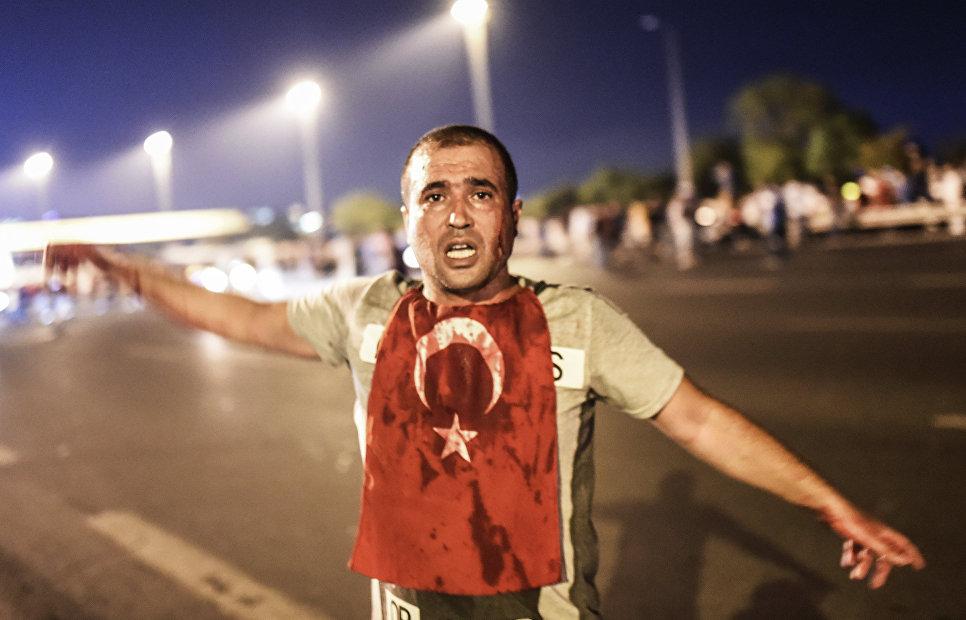 Мужчина, раненый во время июльских протестов в Турции. 16 июля 2016 года