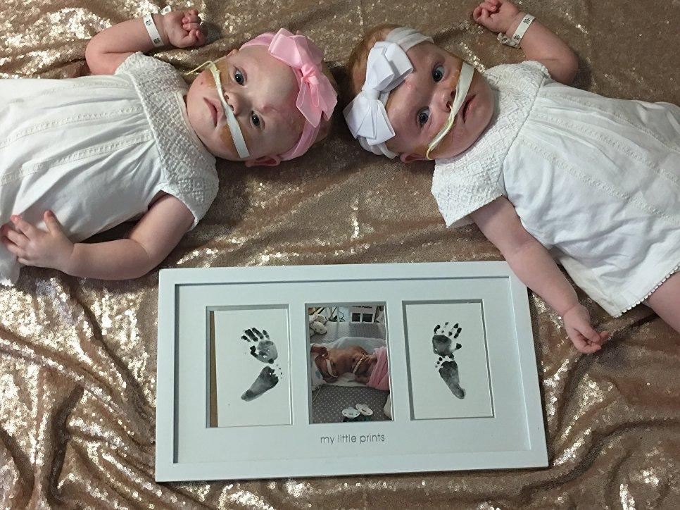 Американские мед. работники удачно распределили сиамских близнецов собщей головой