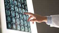 Рентгеновский снимок мозга. Архивное фото