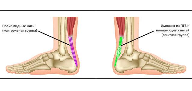 Ученые из России создали композитные протезы для сухожилий