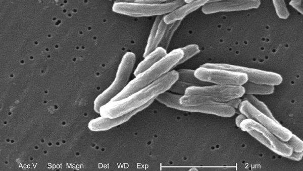 Возбудитель туберкулеза - бактерия Mycobacterium tuberculosis. Архивное фото