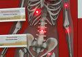 Томские ученые рассказали, как ускорить выздоровление после переломов